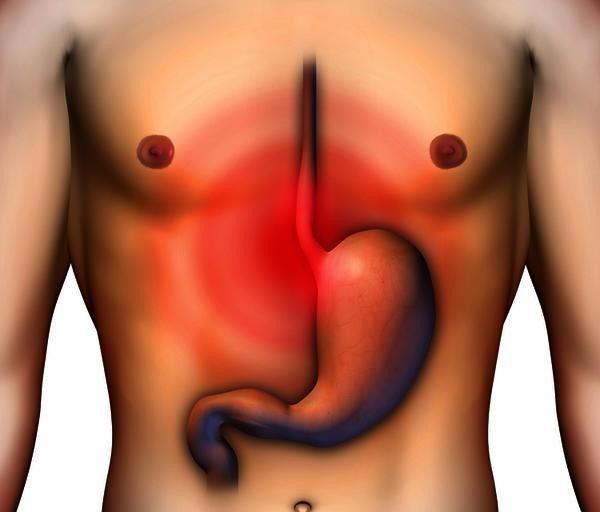 دانلود پاورپوینت گاستریت Gastritis